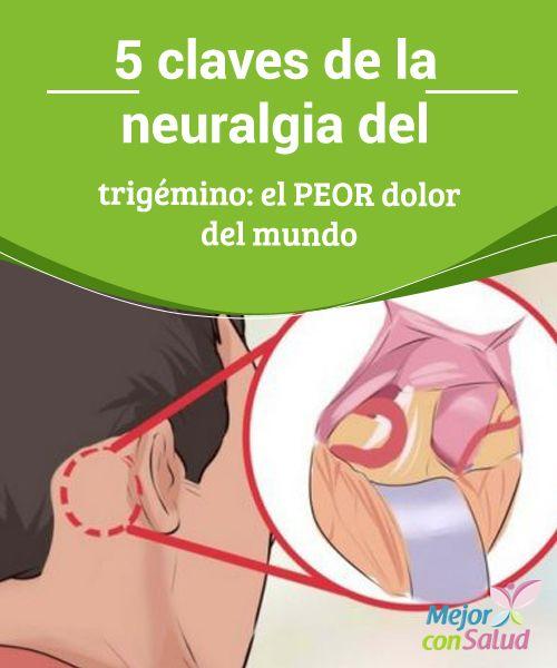 Manejo del dolor del nervio facial