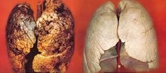 Nossos pulmões sofrem muitoCigarro, poluição de carros, de indústrias, de produtos químicos como, acetona, tintas e vernizes, além da alimentação desvitalizada, são os principais agressores.