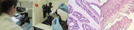 In Situ Hybridization(ISH) Creative Bioarray offers completely customized ISH service from probe design and tissue procurement to expertly interpreted gene expression studies... http://www.creative-bioarray.com/Services/In-Situ-Hybridization-ISH.htm