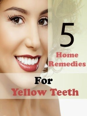 Remedies: Best 5 Home Remedies For Yellow Teeth