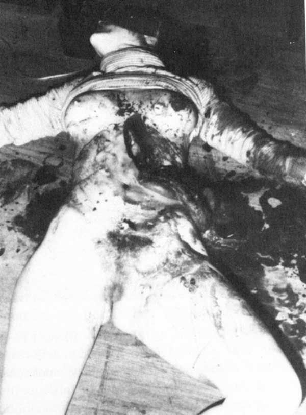 Ted Bundy Victims Autopsy - Bing Images