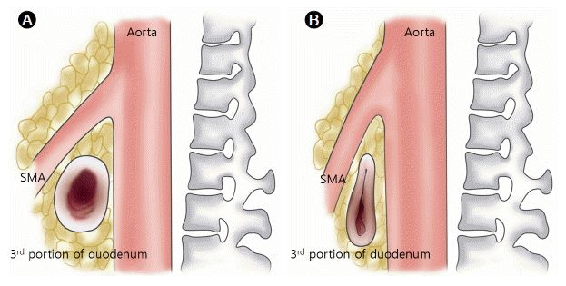 Superior Mesenteric Artery Syndrome (also known as cast syndrome) seen with spica cast