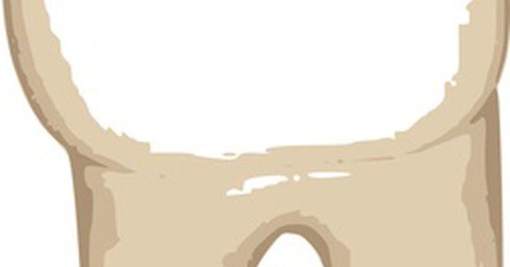 Como colar uma coroa de volta em um dente. Uma coroa cobre o dente após uma porção dele ser raspada e removida no processo de restauração do dente. Embora as coroas sejam permanentes, às vezes acontecem imprevistos e ela pode sair. A coroa provisória é ainda mais provável de se soltar. Você pode colá-la de volta no dente temporariamente até que você possa ir ao consultório do seu dentista. ...