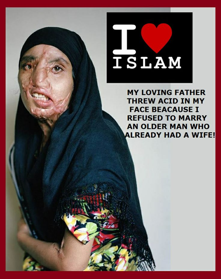 THE REAL WAR ON WOMEN: Yet another Muslim woman burned with acid for her families honor! If a family member does this to her the police do not get involved in most cases in Islamic countries! This is Sharia Law!