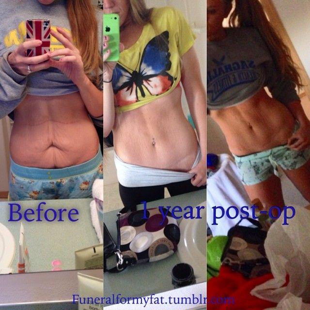 Best 25 tummy tuck scars ideas on pinterest cover for Tattoos on old saggy skin