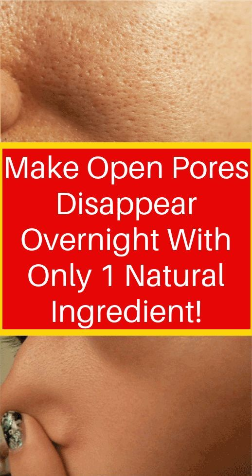 Get Rid Of Open Pores Naturally In Just 3 Days Wit…