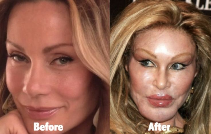 Catwoman Plastic Surgery Gone Wrong 53 Celebrity Plastic