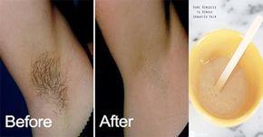 Cada uno de nosotros pasamos tiempo dedicándonos a lucir mejor. Cuidamos de nuestro cabello, de nuestra salud, por supuesto del aspecto de nuestra piel... pero hay un detalle que puede no ser tan atractivo, y es el vello. Si ya estás cansada o cansado de tener que depilarte, existen algunas fórmulas a base de ingredientes caseros que se han utilizado por años para remover el pelo de la axila naturalmente.