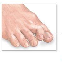 Hammer Toe: A hammer toe.