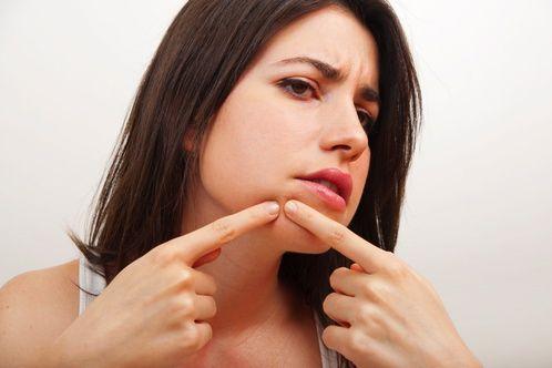 Skin Picking Disorder - Dermatillomania