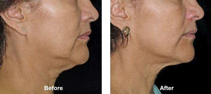 how to get rid of neck waddle