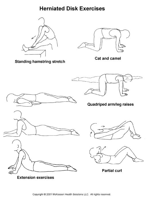 exercises for herniated disc Before i explain to you guys my new workout, here is some important information about herniated disk.