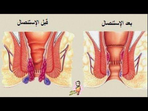 علاج البواسير في يوم واحد