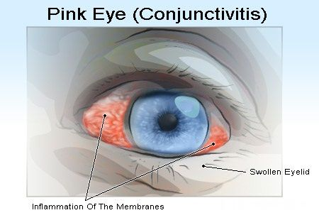Home Remedies For Conjunctivitis In Adults - Natural Treatments & Cure For Conjunctivitis In Adults | Find Home Remedy