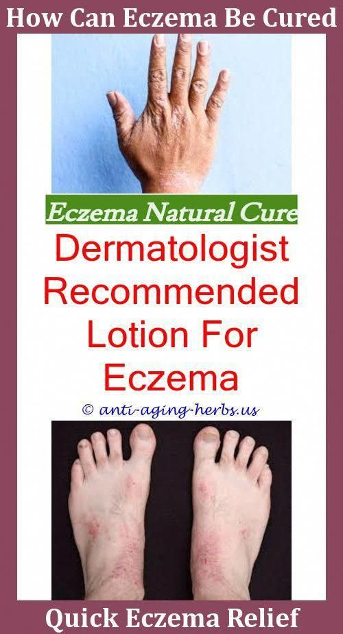 Otc Eczema Treatment Infantile Seborrheic Dermatitis Vs Eczema,natural  eczema face cleanser for eczema skin.Eczema Rash On Back,common c…