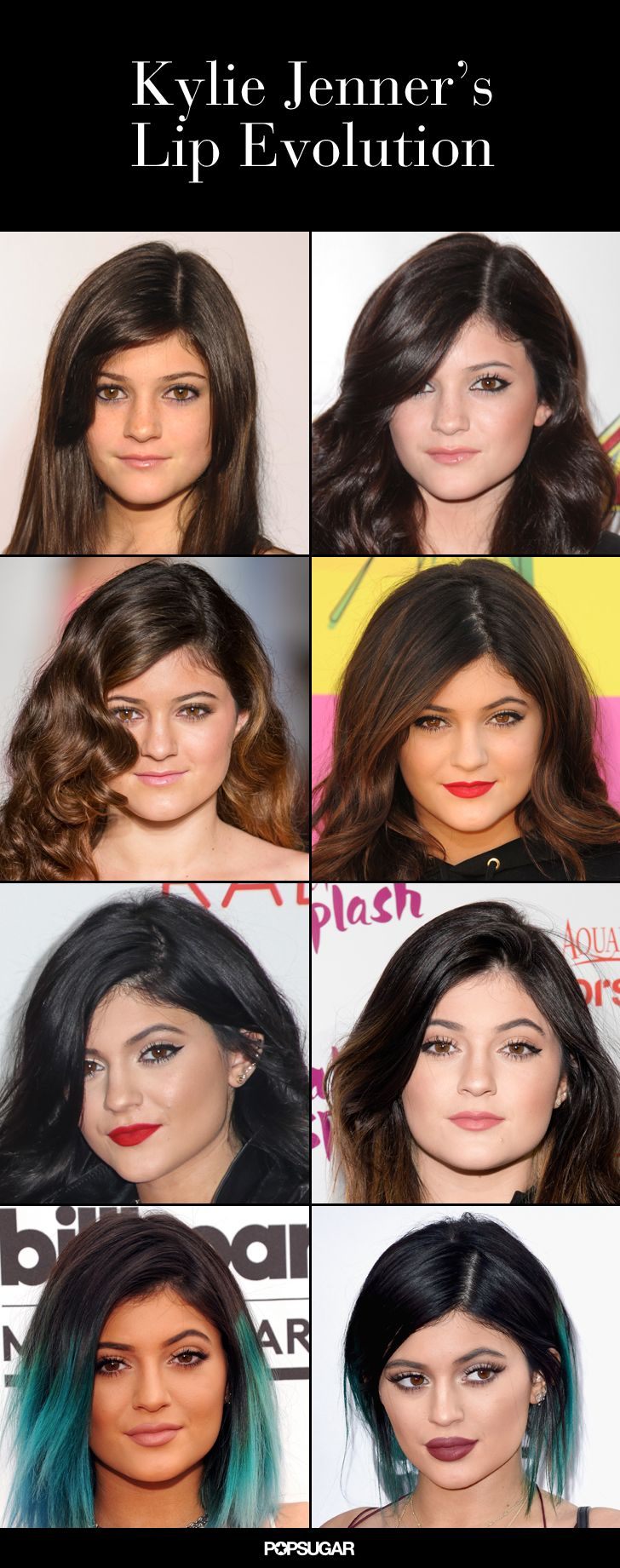 The transformation of Kylie's prodigious pout has to be seen to be believed.