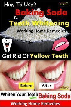 Baking Soda For Teeth Whitening: 17 Natural Teeth Whitening Options That Work Fast, Effective Home Remedies To Get Rid Of Yellow Teeth, How To Use Baking Soda For Teeth Whitening? Is Baking Soda Good For Teeth Whitening. Having white teeth and a bright smile is a dream of every person. Yellow or stained teeth can often be embarrassing. They can be caused by many things such as unhealthy oral hygiene, indulging in excessive tea, coffee or tobacco chewing, acidic drinks, smoking, certain…