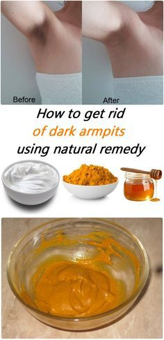 How to get rid of da