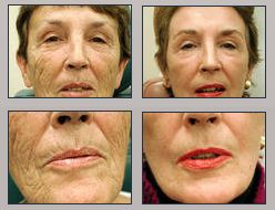 1000 images about juva before after gallery on for Picosure tattoo removal michigan