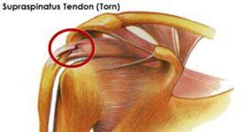 supraspinatus tendon tear | Supraspinatus Tendon Tear | BursitisTendonitis.com