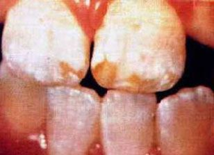 Dental fluorosis picture