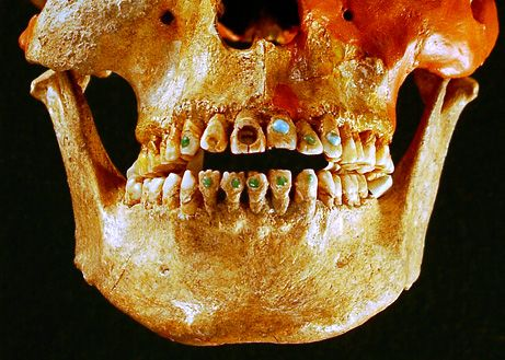 """sixpenceee: Ancient Gem-Studded Teeth Ancient peoples of southern North America went to """"dentists"""" to beautify their teeth with notches, grooves, and semiprecious gems. Mostly men opted for this look. This is not a mark of social class but meant for pure decoration. The early dentists used a drill-like device with a hard stone such as obsidian, which is capable of puncturing bone. The ornamental stones were attached with an adhesive made out of natural resins, such as plant sap. This was…"""