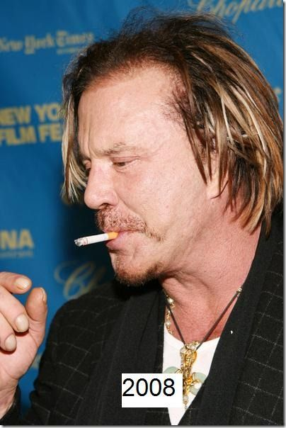 Best Celebrity Hair Transplants Pictures #celeb #hair #transplants http://cleveland.remmont.com/best-celebrity-hair-transplants-pictures-celeb-hair-transplants/  # Best Celebrity Hair Transplants Pictures Mickey Rourke's hair transplant looks okay to me. Like many people, you can definitely see right through all the way to his scalp if there is a light shining down on top of him. All in all I'd say he's got decent coverage, although I've seen better hairdos. Compared to when he was still…