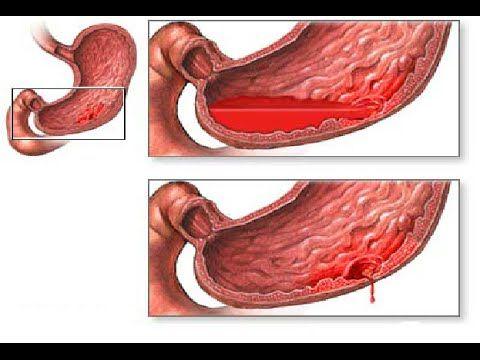 Menghindari Penyakit Asam Lambung, penyakit asam lambung, Asam lambung meninggi bisa karena mencernaan makanan berprotein tinggi seperti daging, telur, susu,...