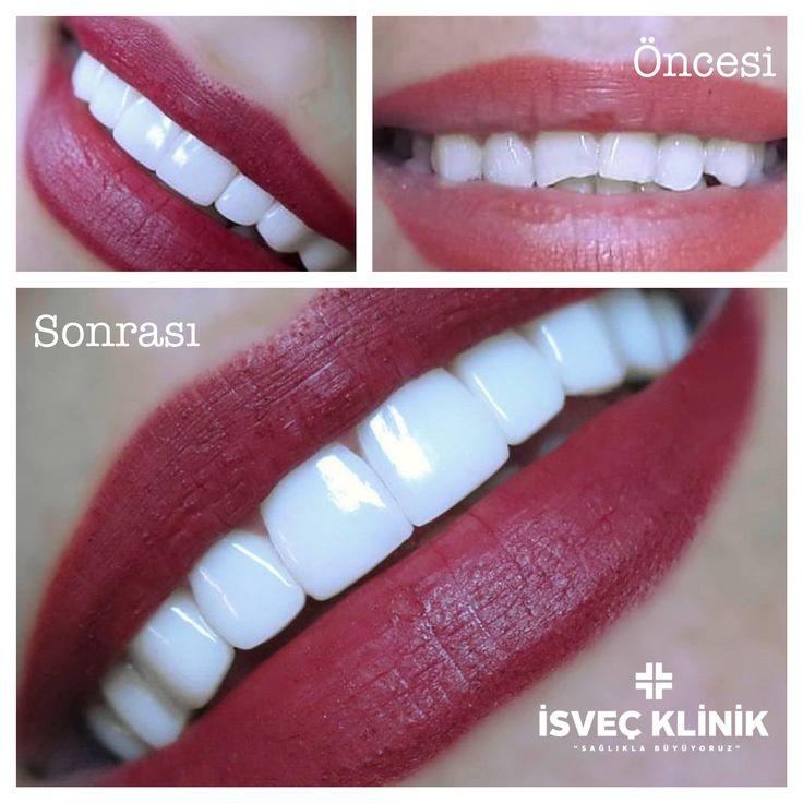 Mükemmel gülümsemenin sırrını açıklıyoruz Zirkonyum Tedavisi ☎️ 02122155535 #diş #zirkonyum #sağlık #implant #gülüşestetiği #gülümse