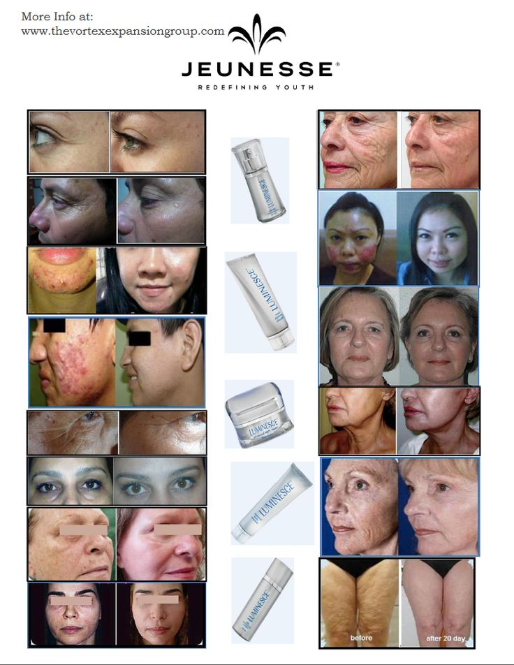 The remarkable results with The Jeunesse LUMINESCE Adult Stem Cell Rejuvenation technology based Skin Care! More info at: www.thevortexexpansiongroup.com