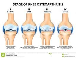 Image result for knee arthritis