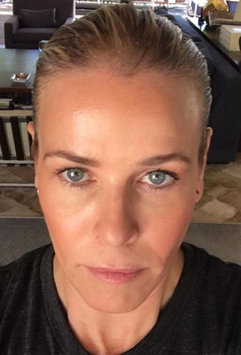 Chelsea Handler's 'Awesome' Before-And-After Photos Will Make You Want to Try ProFractional Laser Treatment