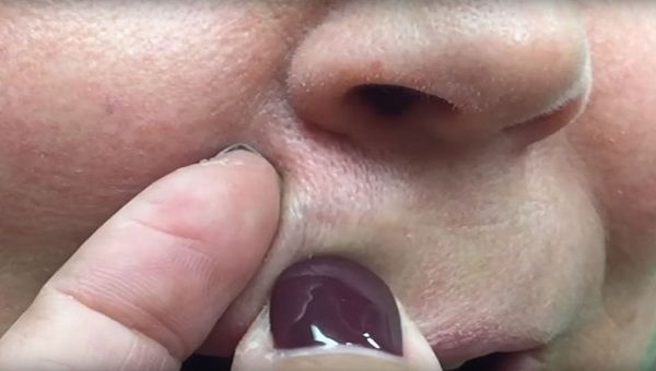 She Squeezed Her Lip For a Year Until Doctor Found This