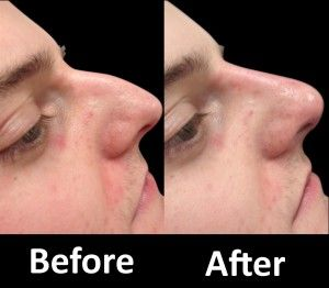 Rhinoplasty is a cosmetic surgery, which is the most renowned ways in UK, specifically in Wolverhampton. The process of this non-surgical rhinoplasty doesn't require any procedure. This is advantageous in a way that it will only need you couple of minutes to undergo the process.