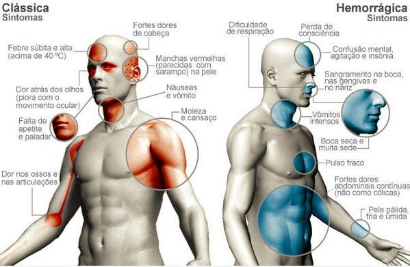 Atenção aos sintomas da dengue!!!! #dica de #saúde #meuspa #dengue