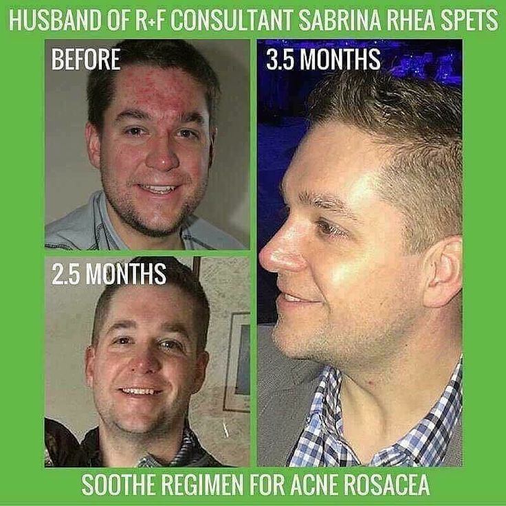 LOVE THIS REAL STORY!!  April is Rosacea Awareness Month!! Do you or someone you know suffer from rosacea?!?! A consultant Sabrina shares the following about her hubby Matt who has suffered from acne rosacea for years: He dealt with skin troubles for years. He used oral and topical medication prescribed by a family physician. He used oral and topical medication prescribed by a dermatologist. NOTHING calmed his skin! NOTHING got rid of the painful acne he regularly dealt with that engulfed…
