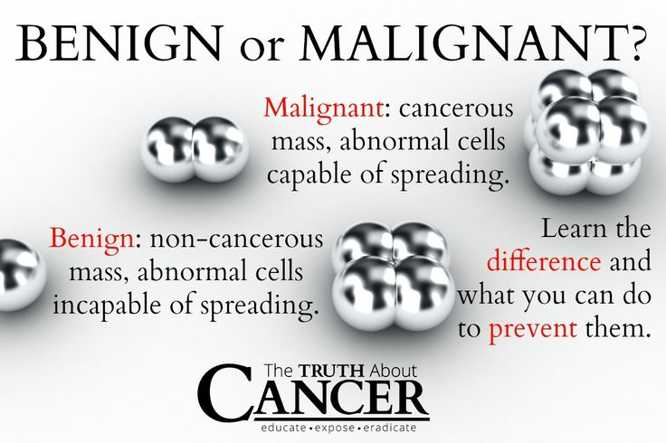 asian have malignant tumor