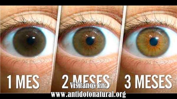 Receta natural para limpiar los ojos reducir las cataratas y aumentar la visión en 3 meses  Mas sim