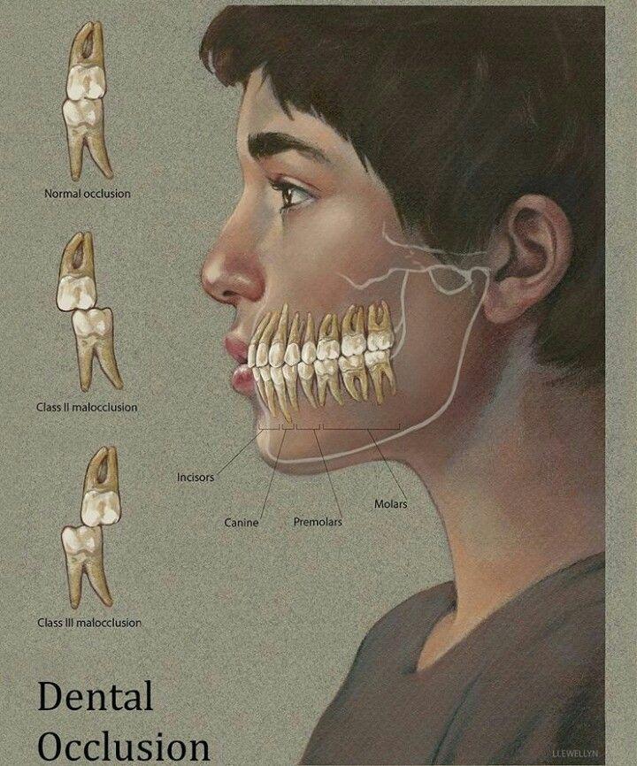 Mal oclusión por nuestros colegas. Expertos en #maloclusion son los #ortodoncistas www.clinicadentalmagallanes.com