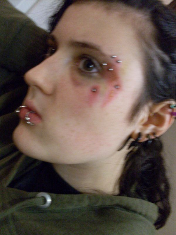 how to clean infected medusa piercing