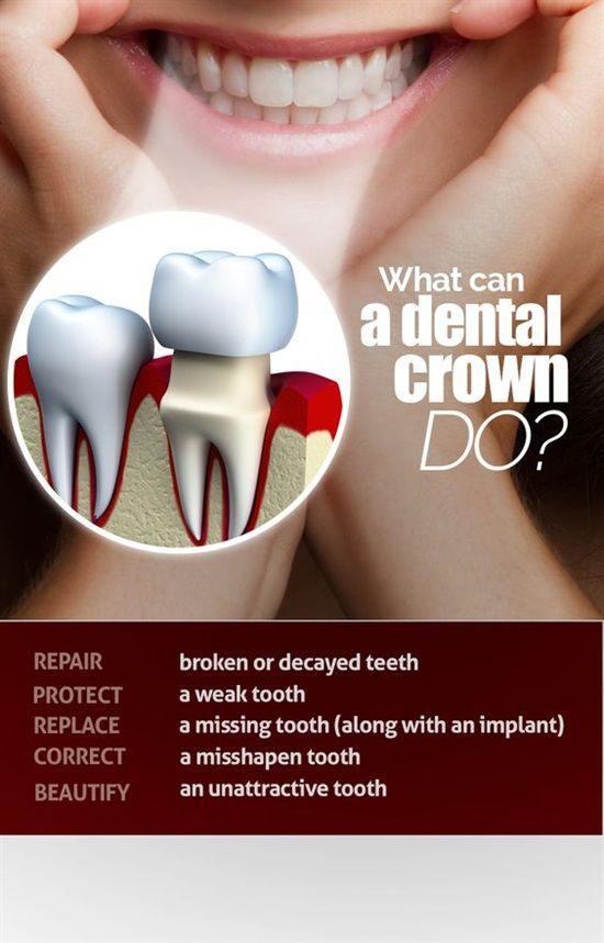 Dentaltown - What can a dental crown do?  •	Repair broken or decayed teeth. •	protect a weak tooth. •	Replace a missing tooth (along with an implant). •	Correct a misshapen tooth. •	Beautify an unattractive tooth.