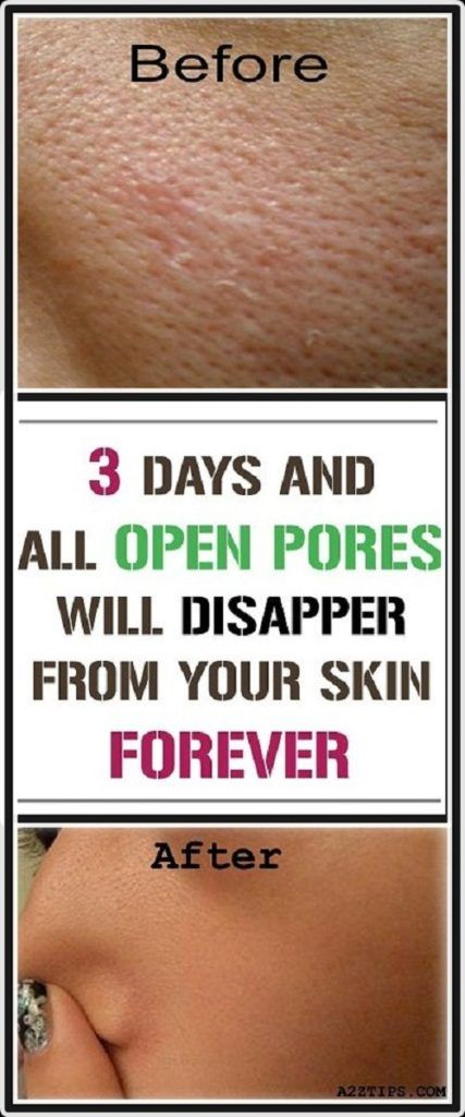 ONLY THREE DAYS AND ALL OPEN PORES WILL DISAPPEAR FROM YOUR SKIN FOREVER