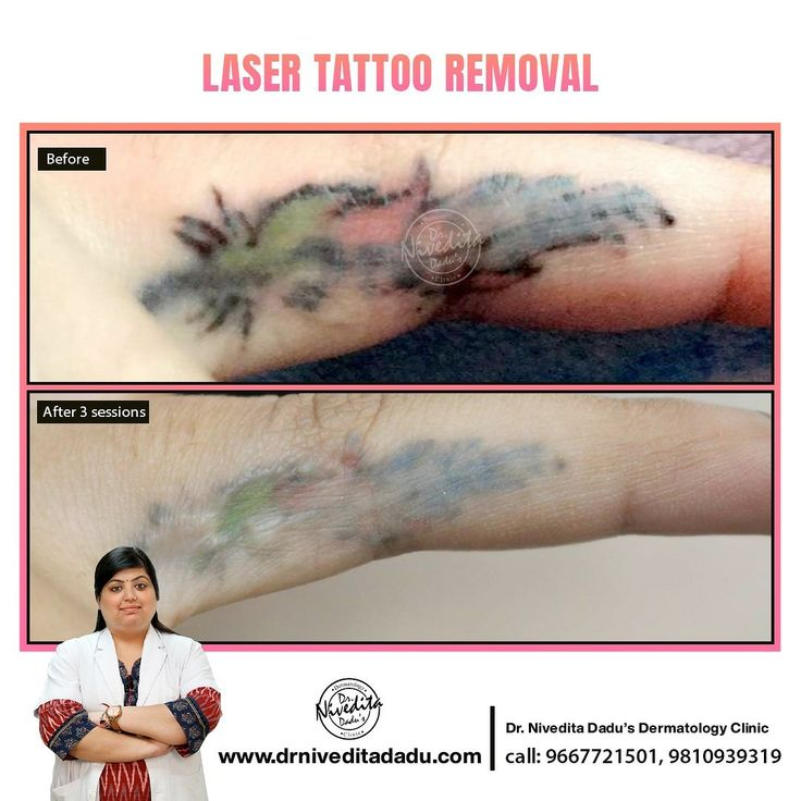 Laser tattoo removal in 2020 Dermatology clinic, Laser