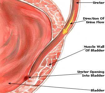 17 Best images about Medical...Urinary & Bladder & Kidneys ...