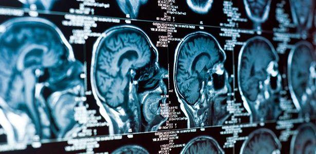 Τα Αρχαία Ελληνικά επαναπρογραμματίζουν τον εγκέφαλο - Αφύπνιση Συνείδησης