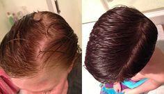 A ricinusolaj az egyik legjobb hajápoló, sokan alkalmazzák zsírosodó, vékony szálú, megviselt hajra. Már nagyanyáink is ricinusolajat használtak annak érdekében, hogy hajuk szebb, fényesebb, és ápoltabb legyen. Ha azt szeretnéd, hogy hajad egészségesebb legyen, és