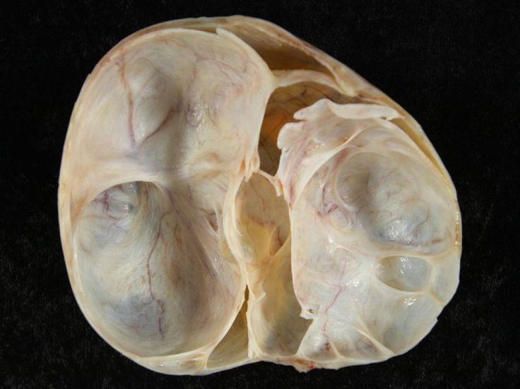 Βλεννώδες κυσταδενοκαρκίνωμα των ωοθηκών