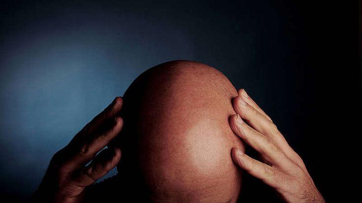 Haarausfall  Zwischen 40 und 120 Haare fallen normalerweise täglich aus, die im Lauf der Zeit durch neue ersetzt werden. Bei Männern nimmt der Haarausfall im Lauf des Lebens zu: Nur 20 Prozent aller Männer behalten ihre Kopfhaare das ganze Leben lang, genauso viele neigen dagegen schon mit etwa 25 Jahren zur Glatzenbildung.