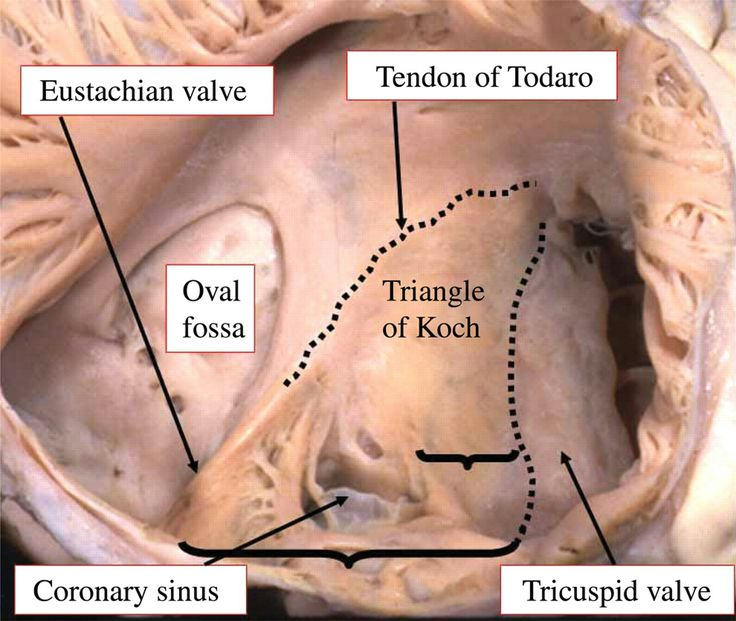 43 best Triangles in anatomy images on Pinterest | Triangle shape ...