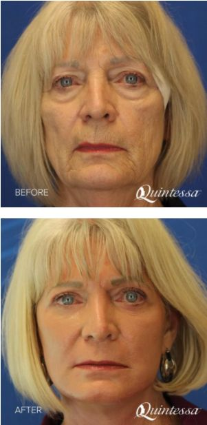 Drooping jowls, sagging facial skin, and wrinkles add years to your appearance. Facelift surgery, or rhytidectomy, is commonly performed at Quintessa to help reverse the signs of aging and drastically improve the appearance of the face and jaw. Click here to learn more about this facelift before and after.